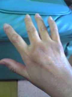 右手の中指。